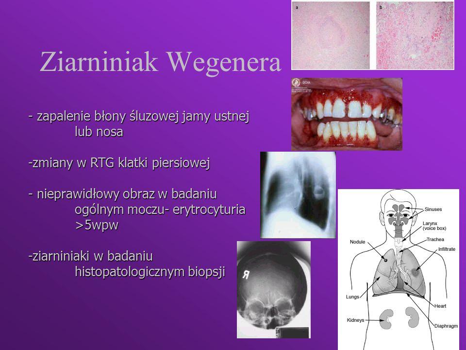 Ziarniniak Wegenera - zapalenie błony śluzowej jamy ustnej lub nosa