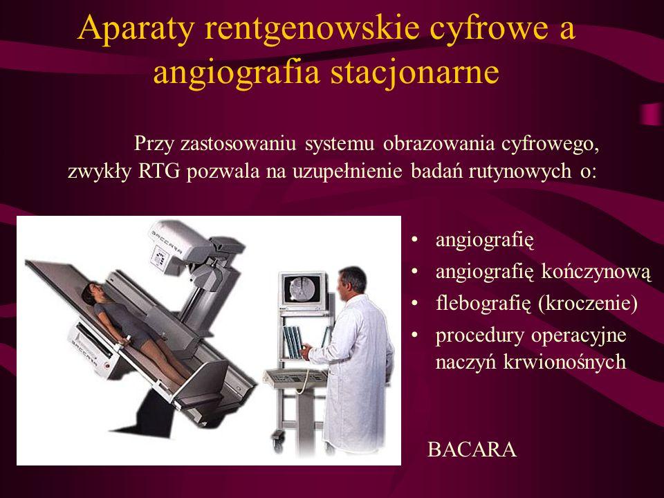Aparaty rentgenowskie cyfrowe a angiografia stacjonarne