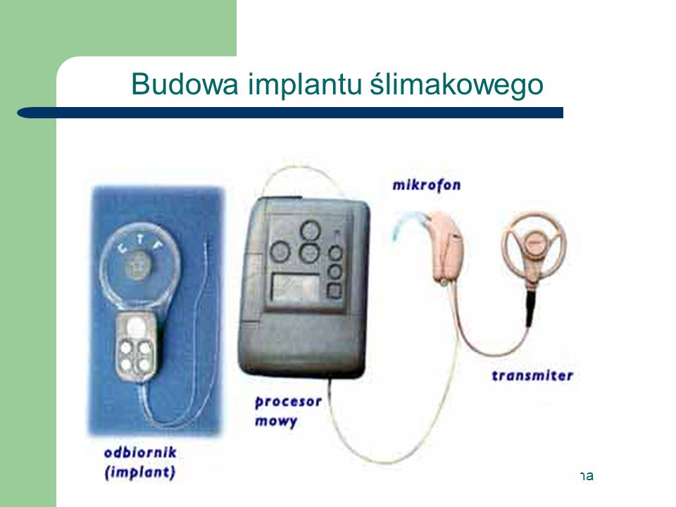 Budowa implantu ślimakowego
