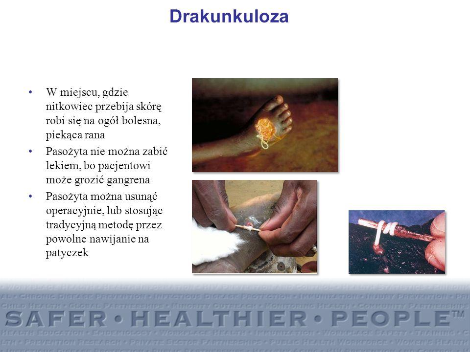 DrakunkulozaW miejscu, gdzie nitkowiec przebija skórę robi się na ogół bolesna, piekąca rana.