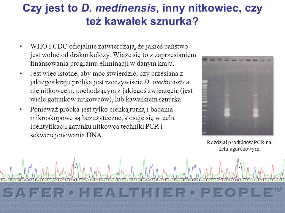 Czy jest to D. medinensis, inny nitkowiec, czy też kawałek sznurka