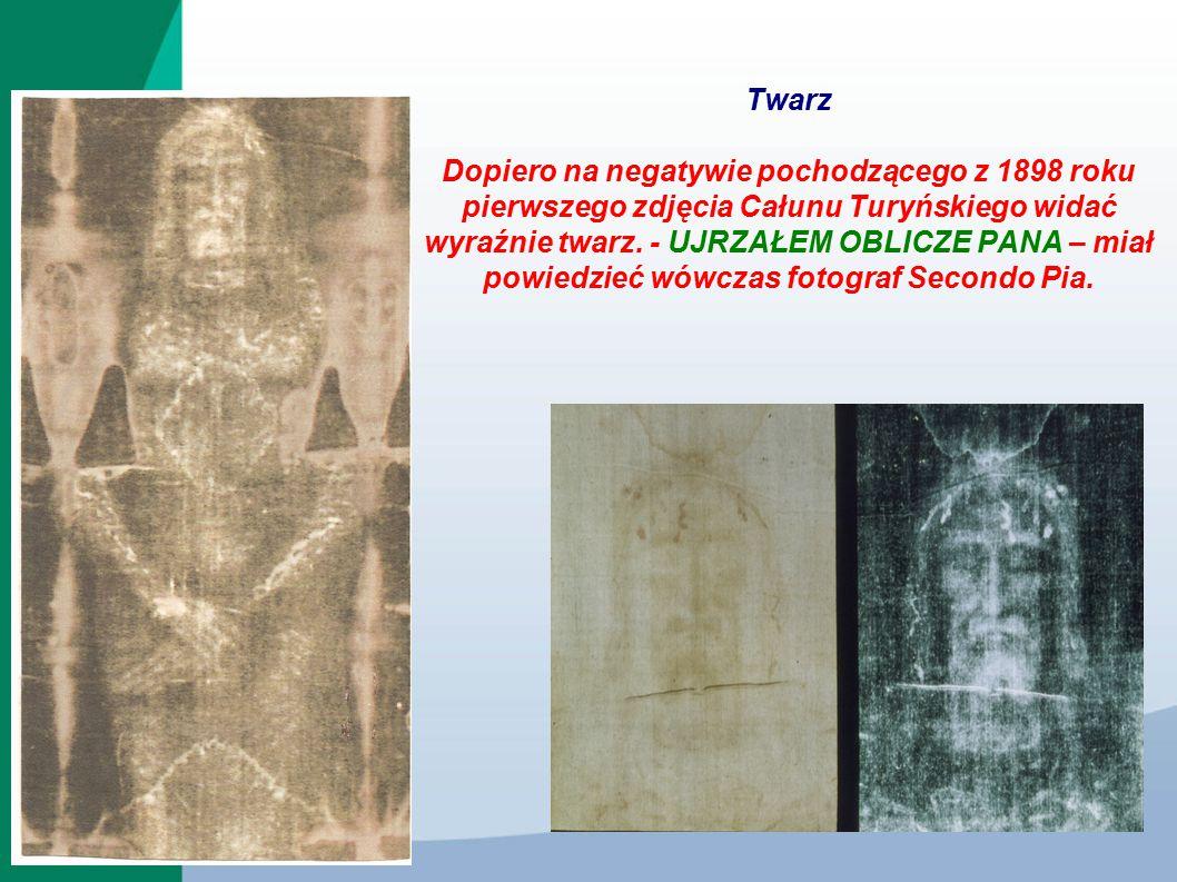 Twarz Dopiero na negatywie pochodzącego z 1898 roku pierwszego zdjęcia Całunu Turyńskiego widać wyraźnie twarz.