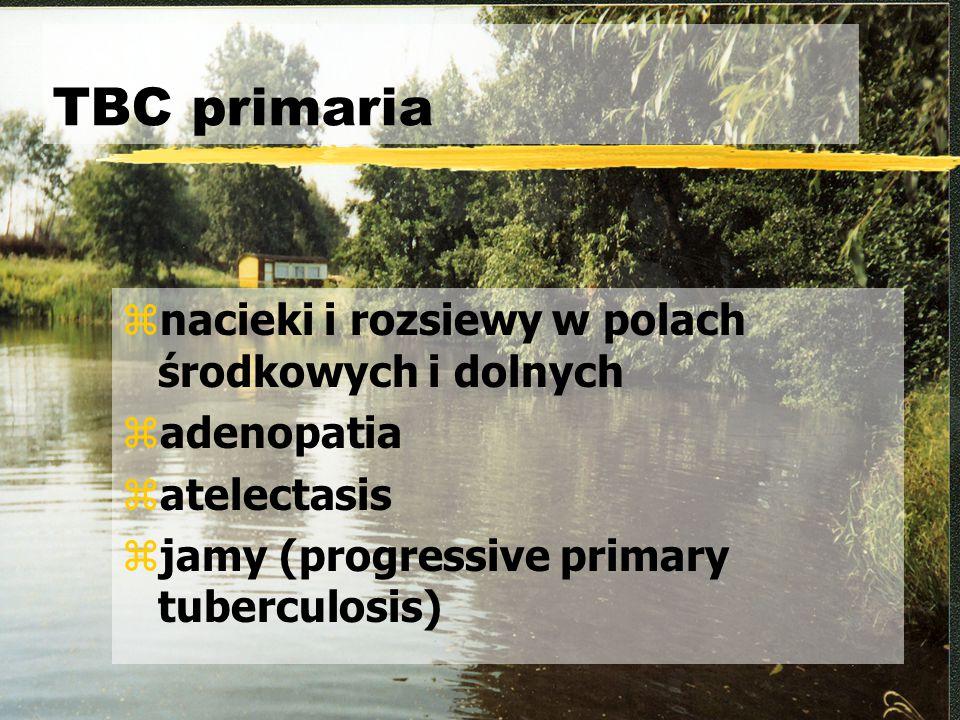 TBC primaria nacieki i rozsiewy w polach środkowych i dolnych