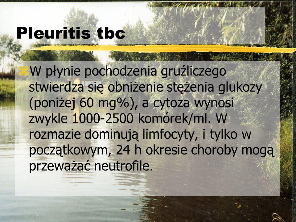 Pleuritis tbc