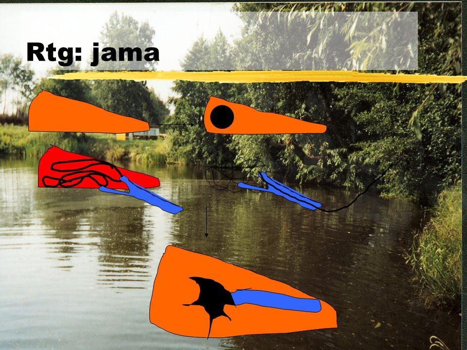 Rtg: jama