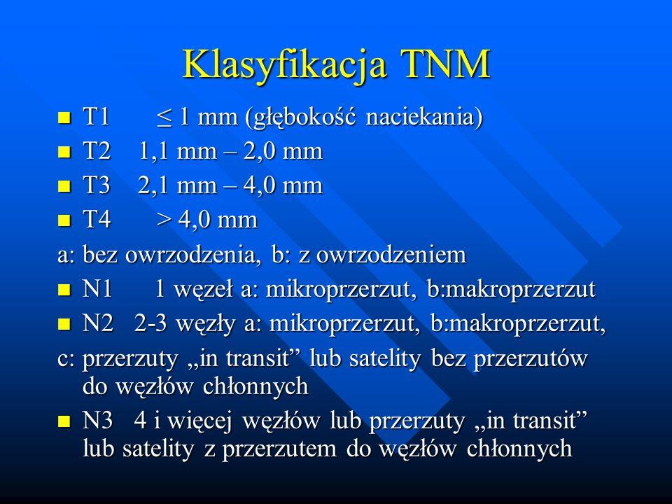 Klasyfikacja TNM T1 ≤ 1 mm (głębokość naciekania) T2 1,1 mm – 2,0 mm