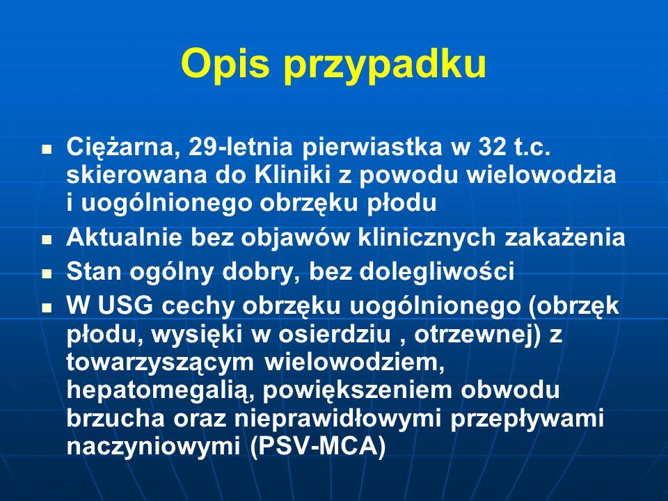 Opis przypadku Ciężarna, 29-letnia pierwiastka w 32 t.c. skierowana do Kliniki z powodu wielowodzia i uogólnionego obrzęku płodu.