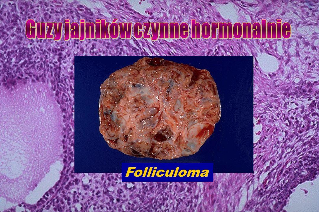 Guzy jajników czynne hormonalnie