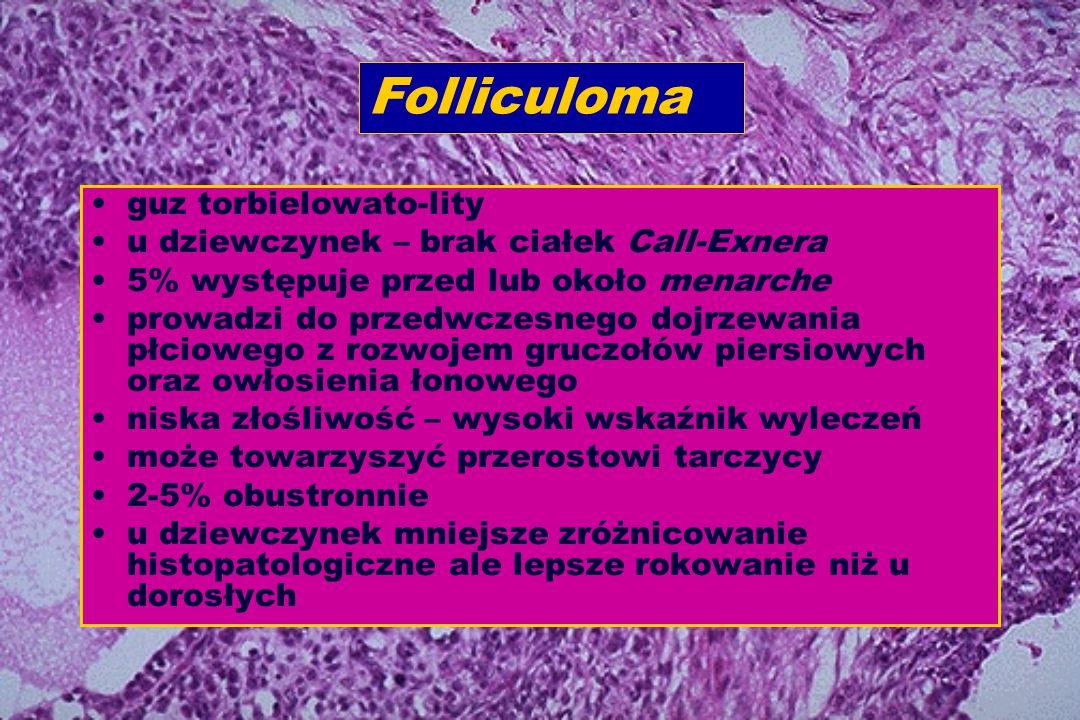 Folliculoma guz torbielowato-lity