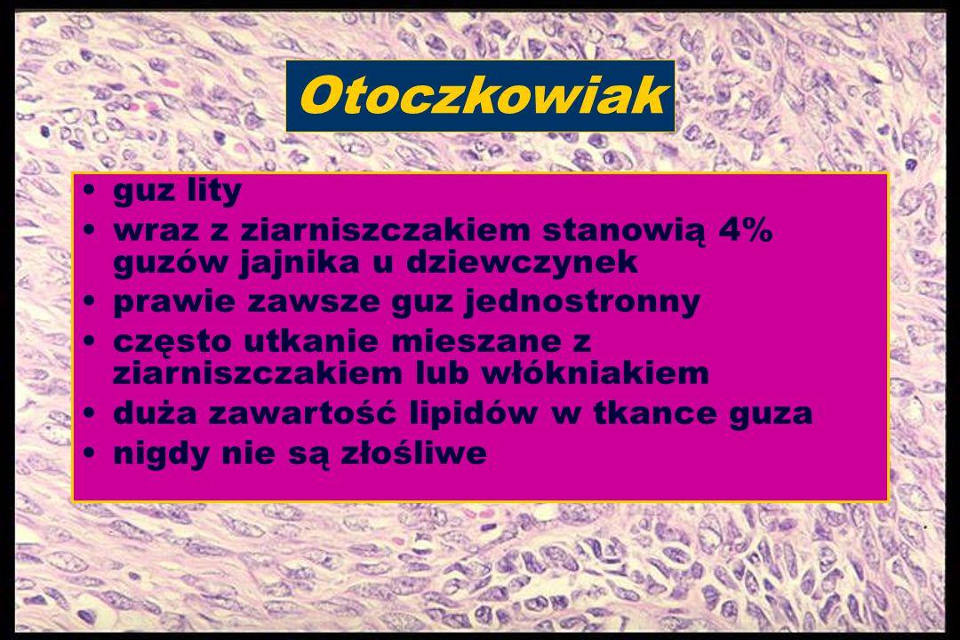 Otoczkowiak guz lity. wraz z ziarniszczakiem stanowią 4% guzów jajnika u dziewczynek. prawie zawsze guz jednostronny.