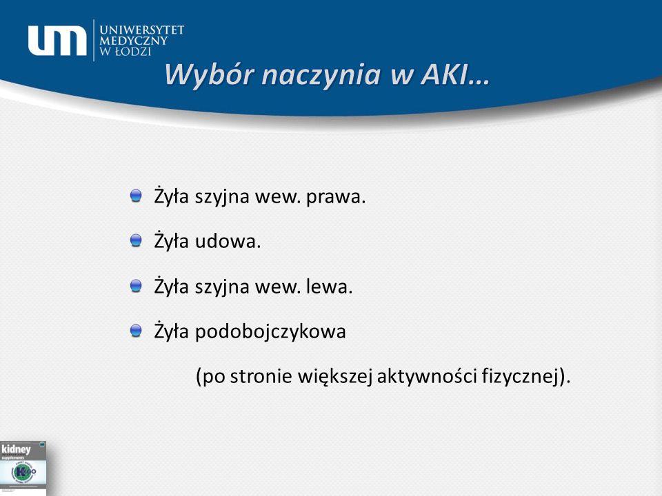 Wybór naczynia w AKI… Żyła szyjna wew. prawa. Żyła udowa.