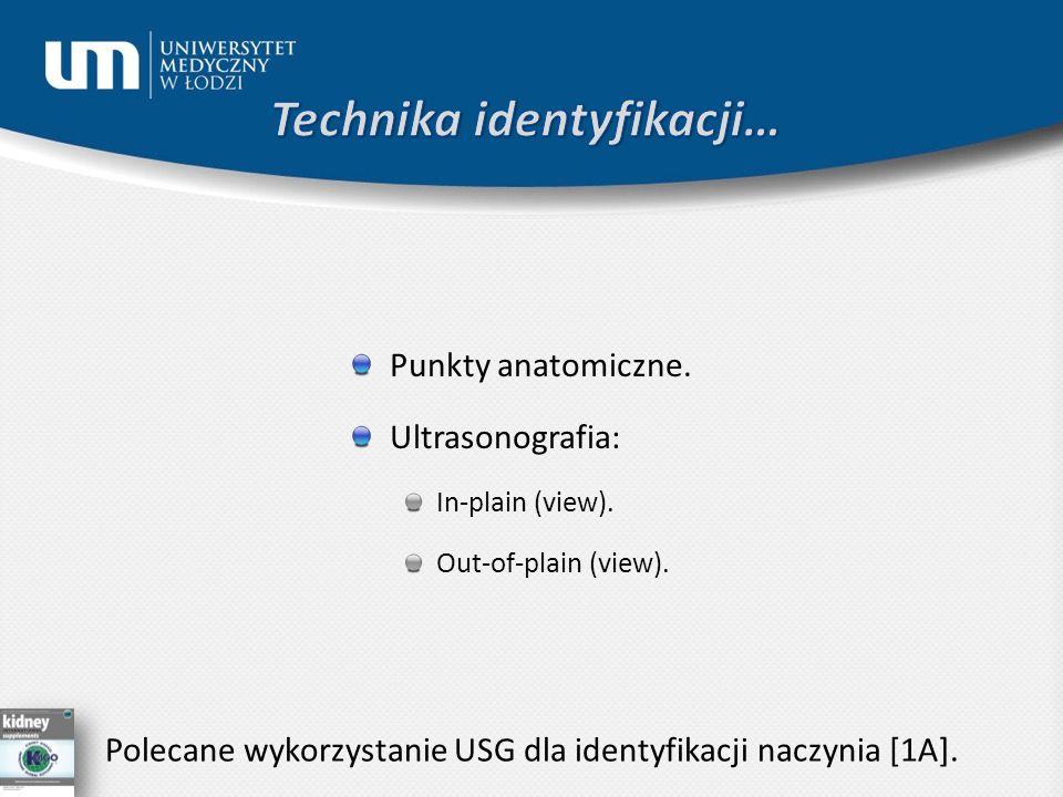 Technika identyfikacji…