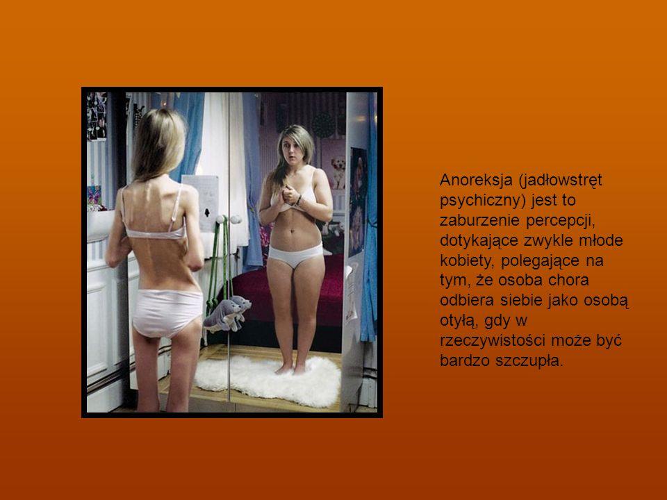 Anoreksja (jadłowstręt psychiczny) jest to zaburzenie percepcji, dotykające zwykle młode kobiety, polegające na tym, że osoba chora odbiera siebie jako osobą otyłą, gdy w rzeczywistości może być bardzo szczupła.