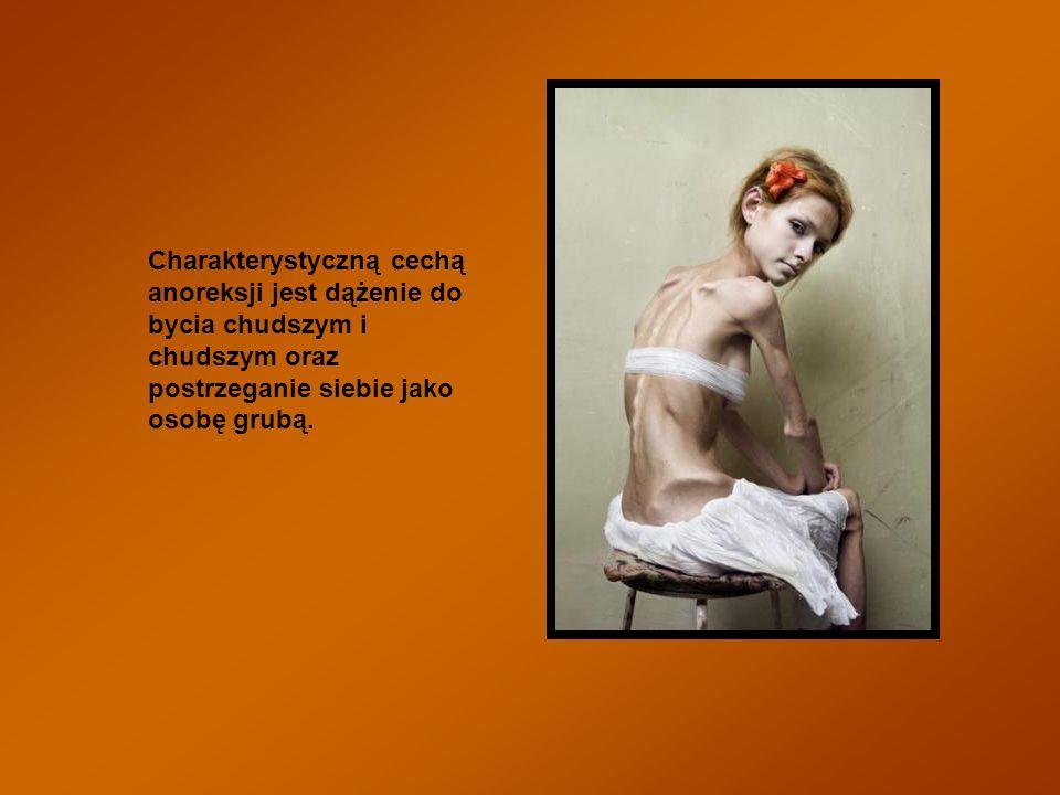 Charakterystyczną cechą anoreksji jest dążenie do bycia chudszym i chudszym oraz postrzeganie siebie jako osobę grubą.