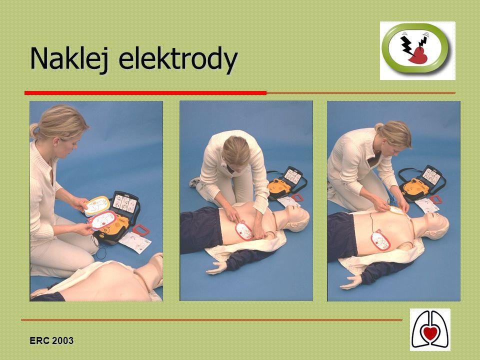 Naklej elektrody ERC 2003