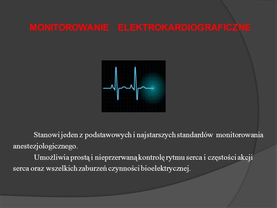 MONITOROWANIE ELEKTROKARDIOGRAFICZNE