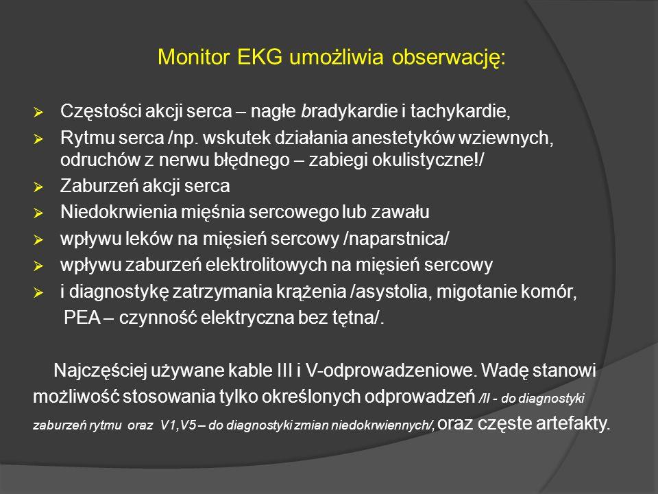 Monitor EKG umożliwia obserwację: