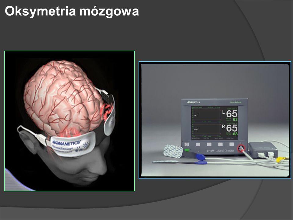 Oksymetria mózgowa