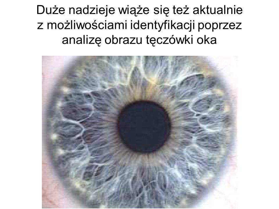 Duże nadzieje wiąże się też aktualnie z możliwościami identyfikacji poprzez analizę obrazu tęczówki oka