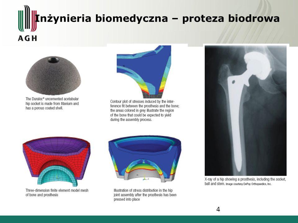 Inżynieria biomedyczna – proteza biodrowa