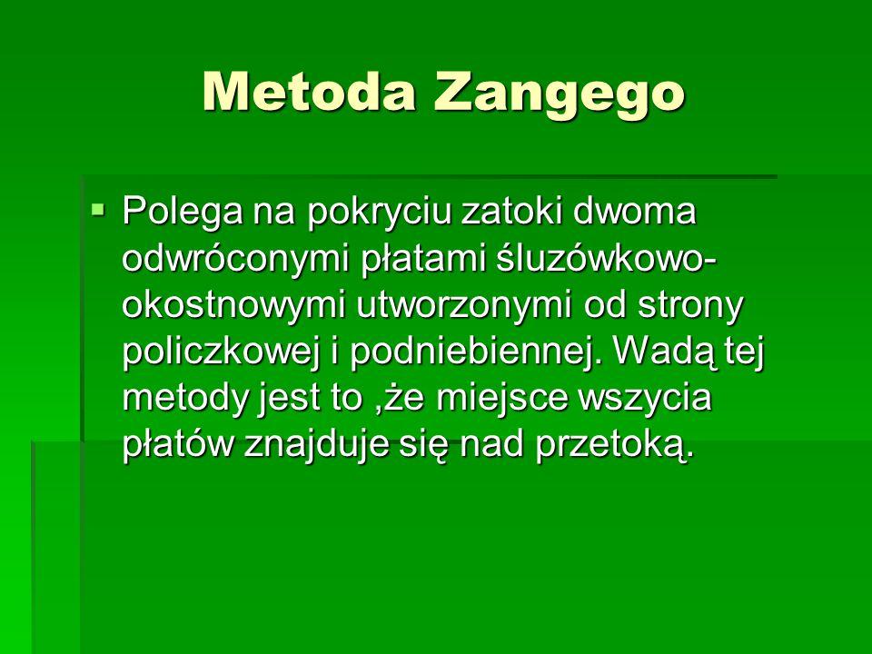 Metoda Zangego