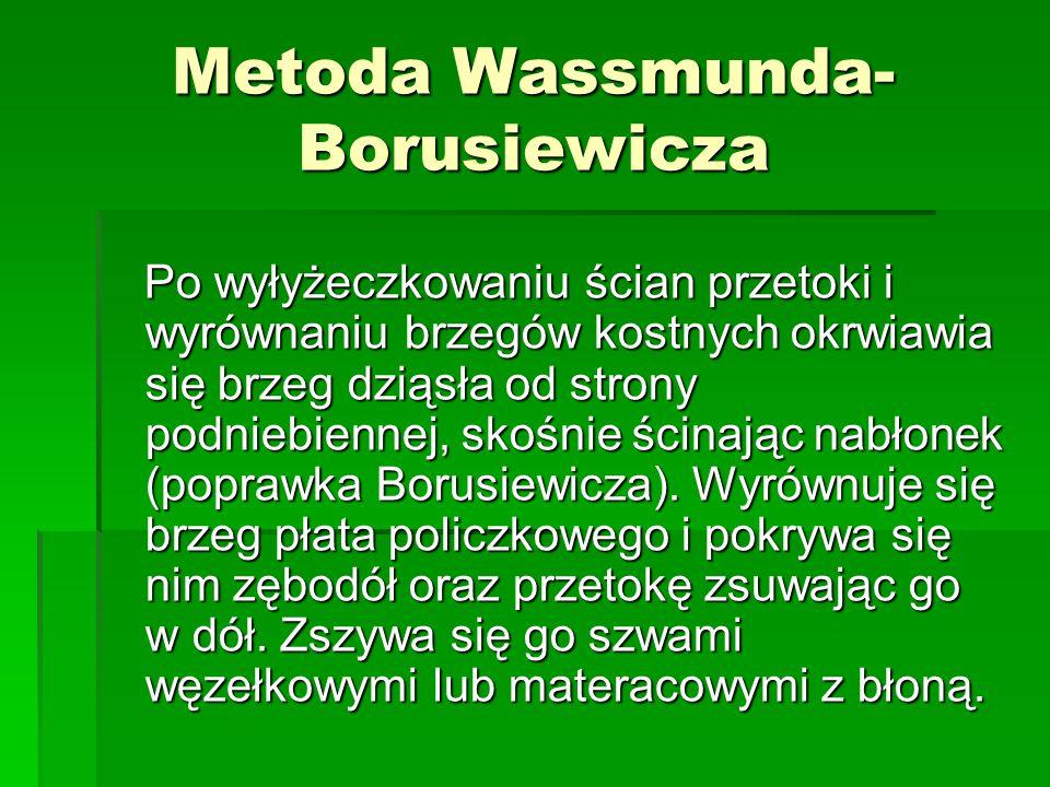 Metoda Wassmunda-Borusiewicza