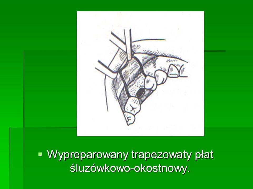 Wypreparowany trapezowaty płat śluzówkowo-okostnowy.