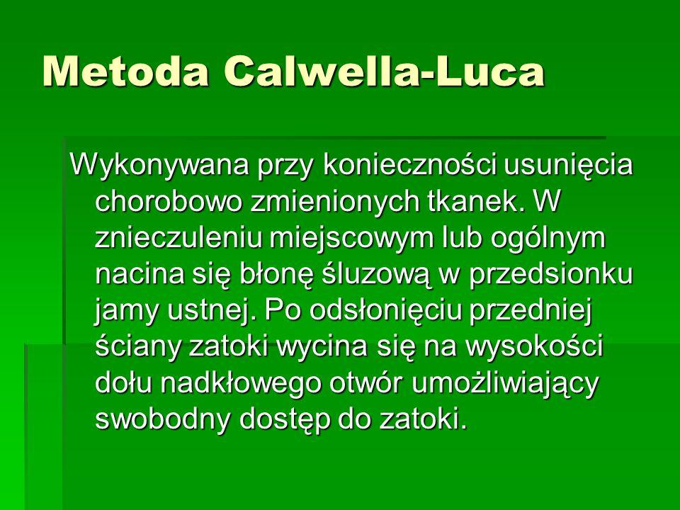 Metoda Calwella-Luca