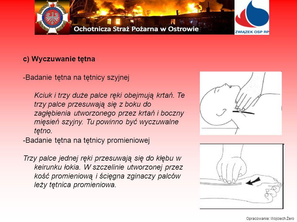 -Badanie tętna na tętnicy promieniowej