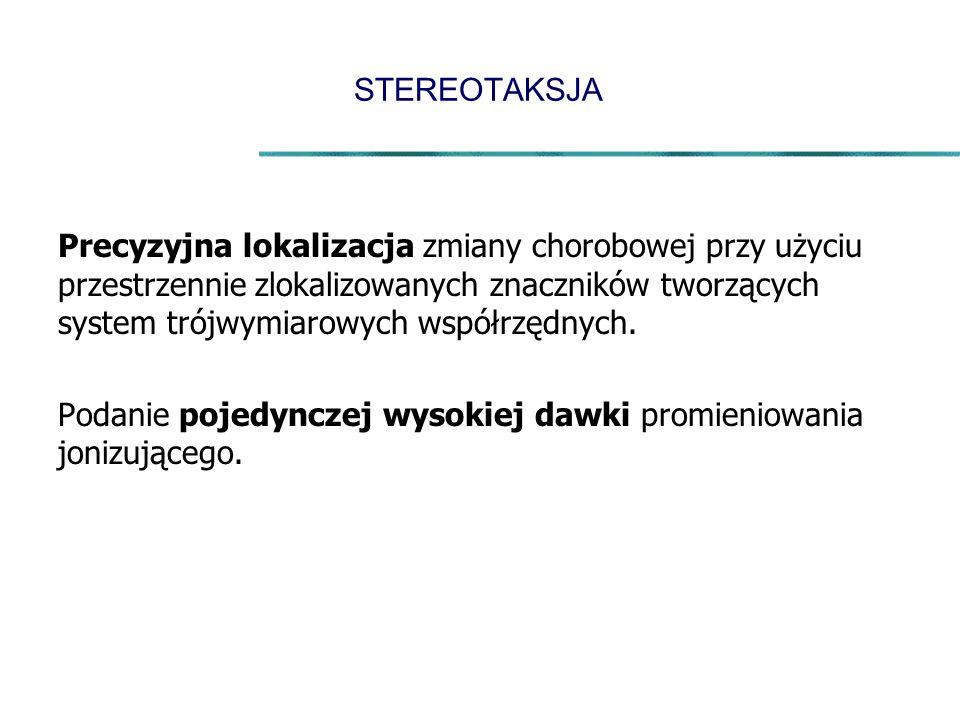 STEREOTAKSJA