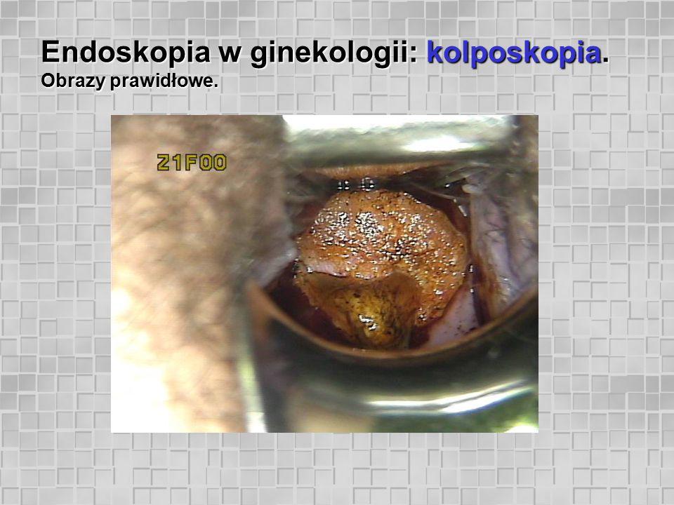 Endoskopia w ginekologii: kolposkopia. Obrazy prawidłowe.