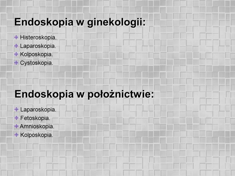 Endoskopia w ginekologii: