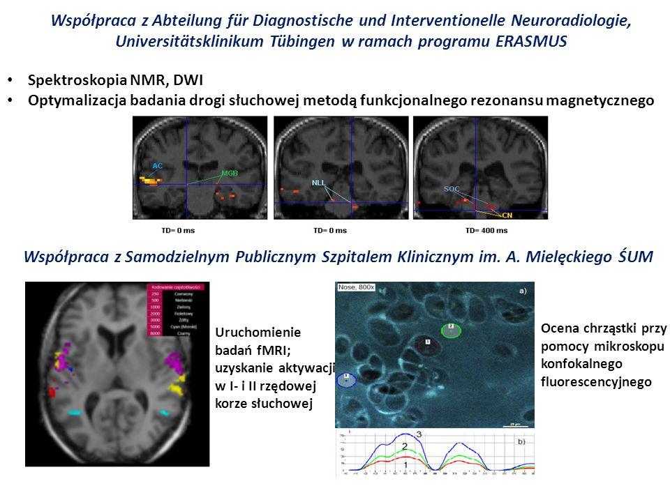 Współpraca z Abteilung für Diagnostische und Interventionelle Neuroradiologie, Universitätsklinikum Tübingen w ramach programu ERASMUS