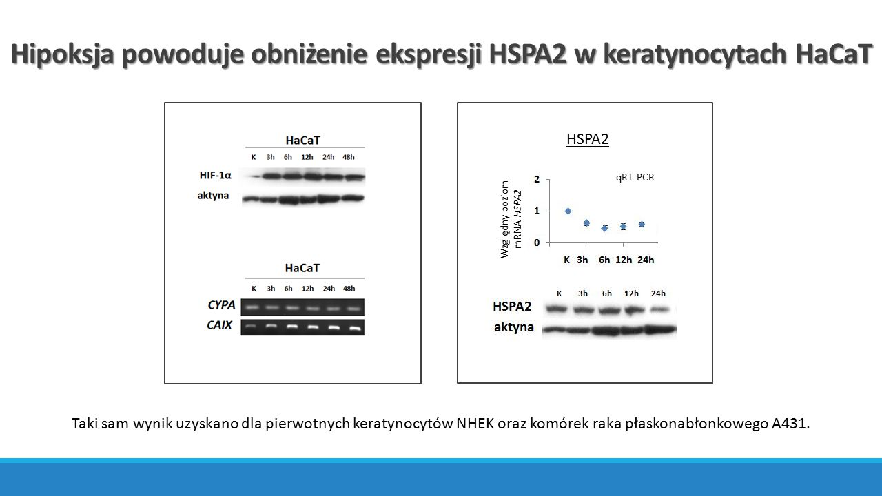 Hipoksja powoduje obniżenie ekspresji HSPA2 w keratynocytach HaCaT