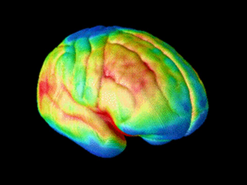 The decade-long magnetic resonance imaging (MRI) study of normal brain development, from ages 4 to 21, by researchers at NIH s National Institute of Mental Health (NIMH) and University of California Los Angeles (UCLA) shows that such higher-order brain centers, such as the prefrontal cortex, don t fully develop until young adulthood as grey matter wanes in a back-to-front wave as the brain matures and neural connections are pruned.