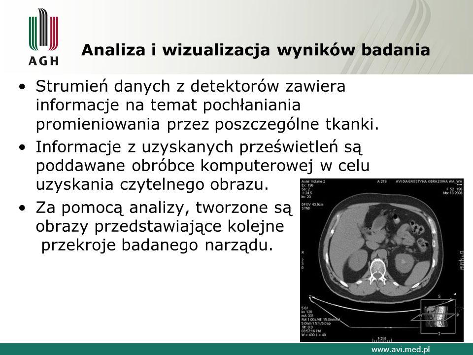Analiza i wizualizacja wyników badania