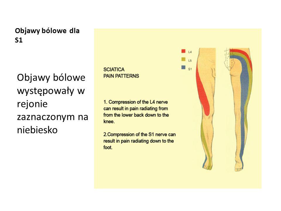 Objawy bólowe występowały w rejonie zaznaczonym na niebiesko
