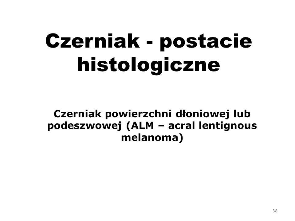 Czerniak - postacie histologiczne