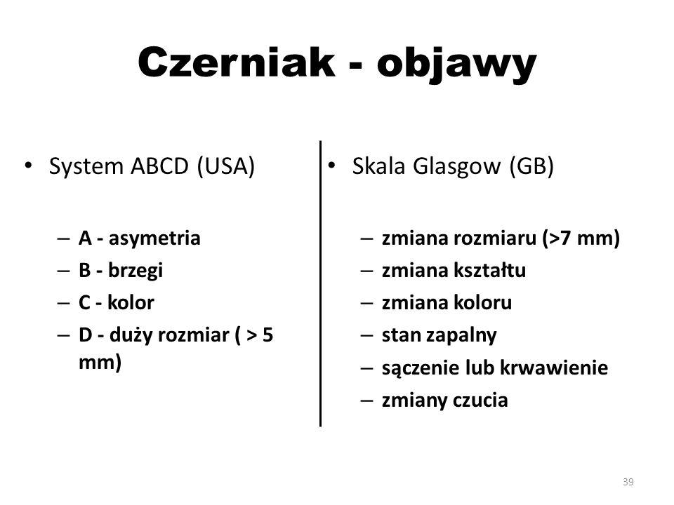 Czerniak - objawy System ABCD (USA) Skala Glasgow (GB) A - asymetria