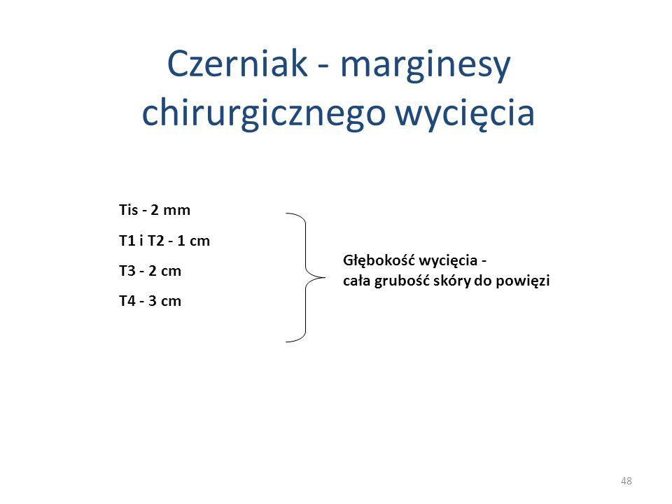 Czerniak - marginesy chirurgicznego wycięcia
