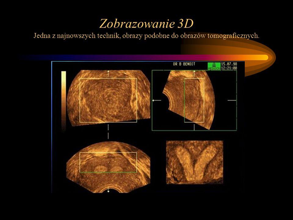 Zobrazowanie 3D Jedna z najnowszych technik, obrazy podobne do obrazów tomograficznych.