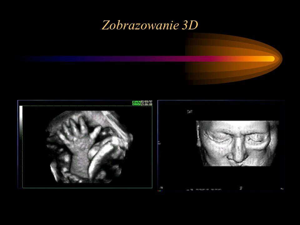 Zobrazowanie 3D