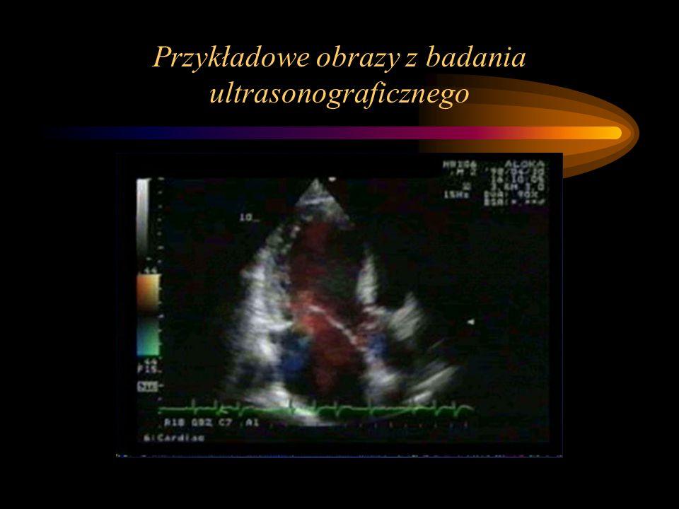 Przykładowe obrazy z badania ultrasonograficznego