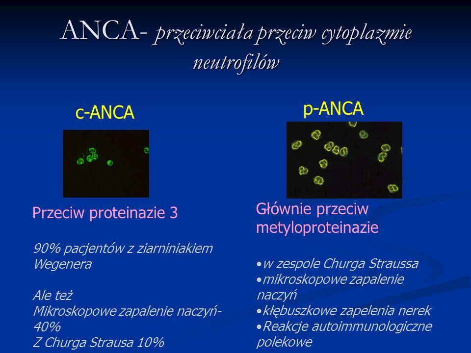 ANCA- przeciwciała przeciw cytoplazmie neutrofilów