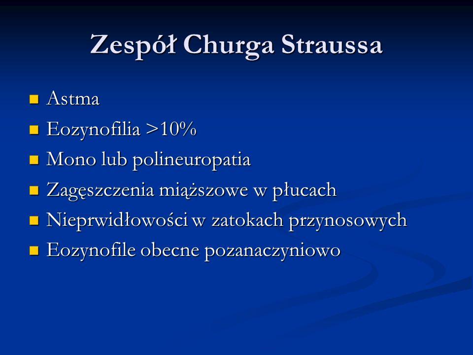 Zespół Churga Straussa