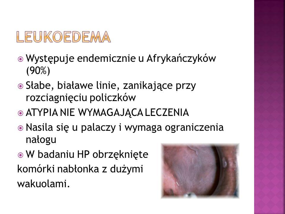 leukoedema Występuje endemicznie u Afrykańczyków (90%)