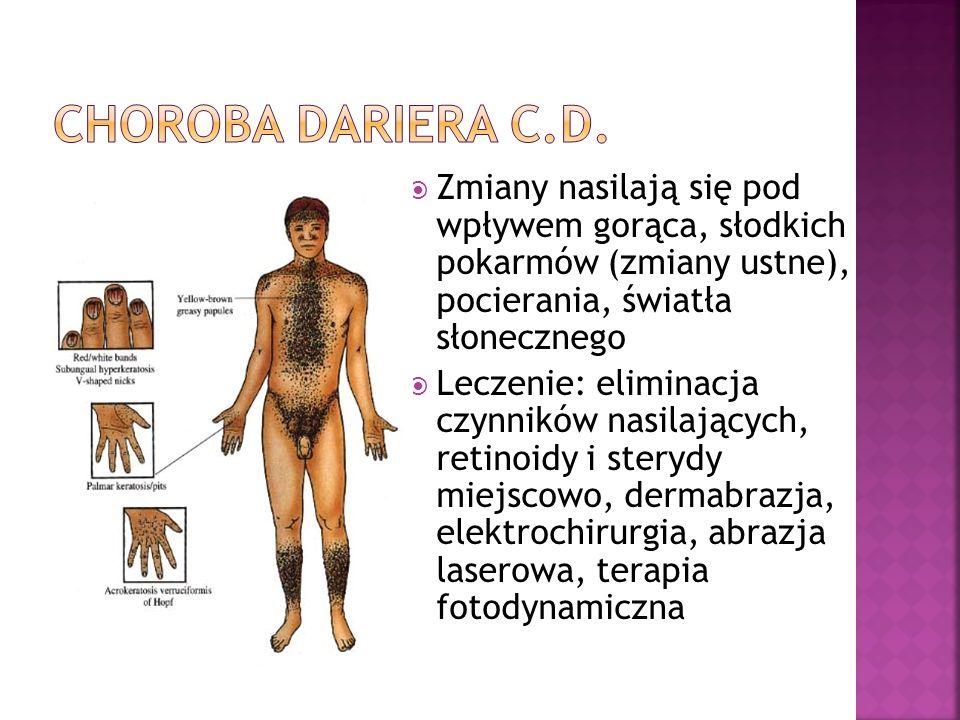 Choroba dariera c.d. Zmiany nasilają się pod wpływem gorąca, słodkich pokarmów (zmiany ustne), pocierania, światła słonecznego.