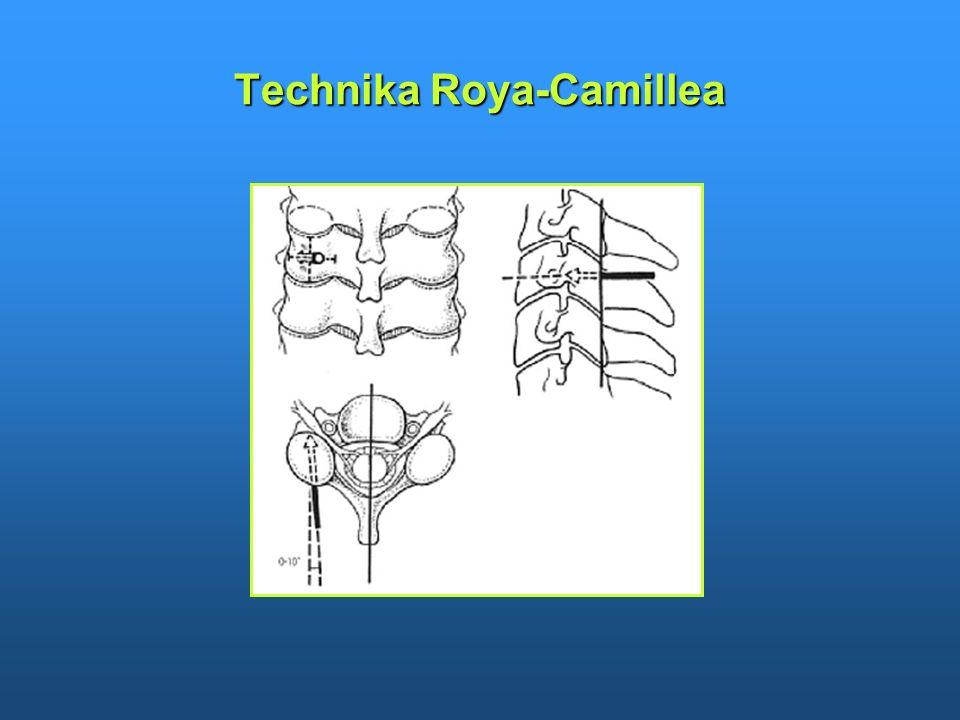 Technika Roya-Camillea