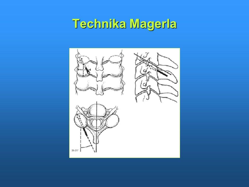 Technika Magerla