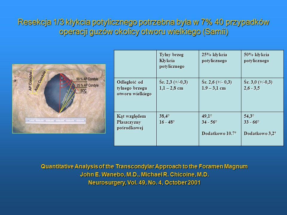 Resekcja 1/3 kłykcia potylicznego potrzebna była w 7% 40 przypadków operacji guzów okolicy otworu wielkiego (Samii)